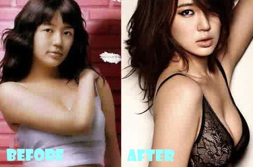 Shocking! Yoon Eun Hye Plastic Surgery Before and After