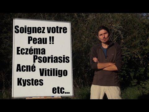 """Jus inflammation cérébrale, acouphènes : il y a le feu """"là-haut""""... - www.regenere.org - YouTube"""