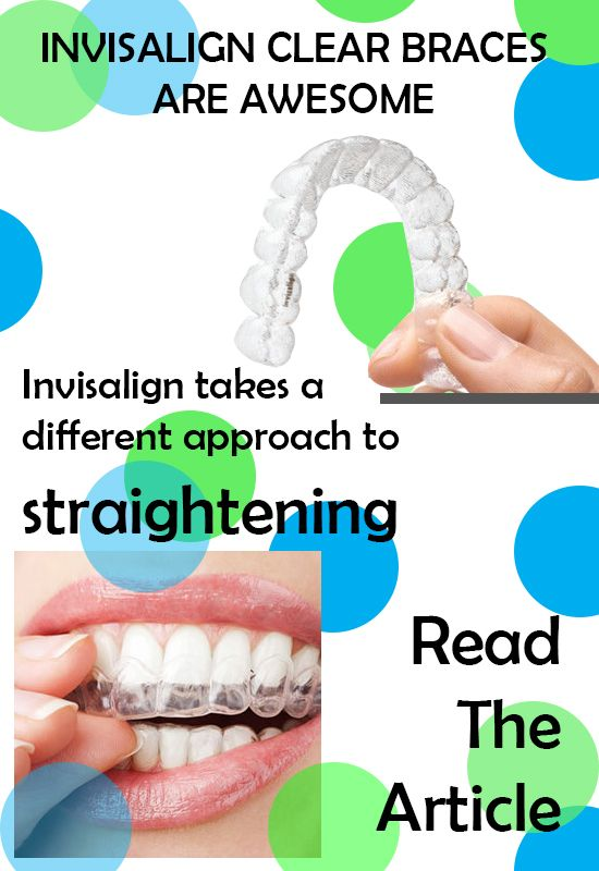 With #Invisalign #aligners from #Garland, #TX #dentist, Dr. Sakunthala Boppana, you look good and eat normally while getting straight #teeth  #braces #dentistry #tooth #oralhealth.
