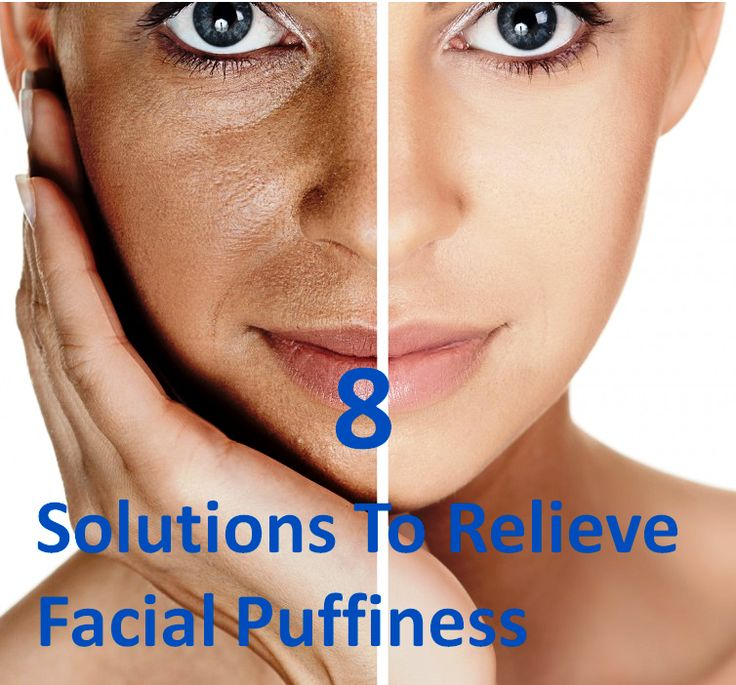 Facial edema solutions