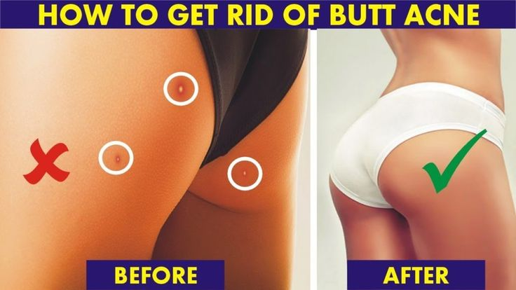 Pin On Hair Removal Tips