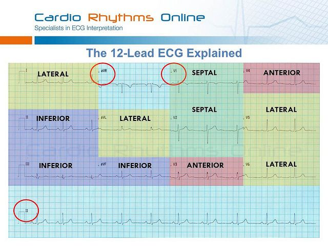 12 lead ecg the art of interpretation pdf