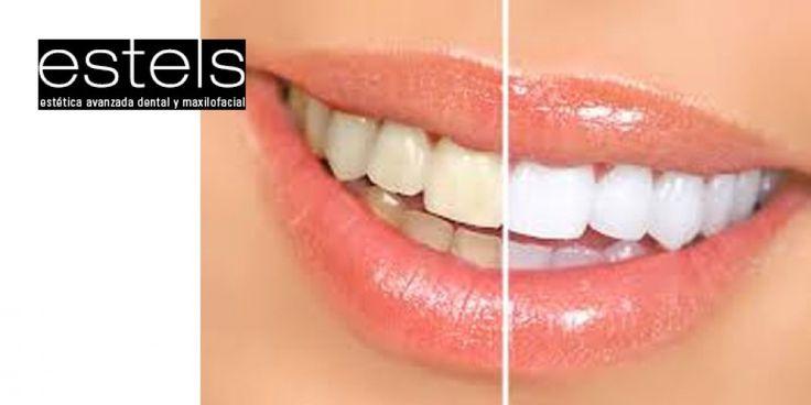 OFERTA: Blanqueamiento dental LED con revisión, radiografía y diagnóstico por sólo 59€