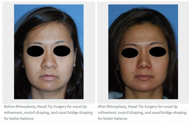 This is a before and after pictures | photo | image of a person who received an Asian Rhinoplasty with the use of her own cartilage