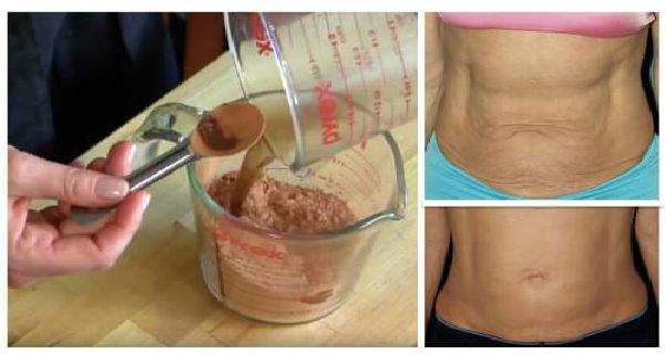 Powerful Natural Mask To Tighten Saggy Stomach Skin At Home Without Expensive Spa Treatments! - http://nifyhealth.com/powerful-natural-mask-to-tighten-saggy-stomach-skin-at-home-without-expensive-spa-treatments/