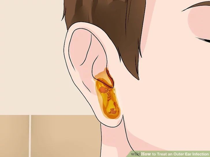 How To Treat An Outer Ear Infection Outer Ear Infection Outer Ear Ear Infection