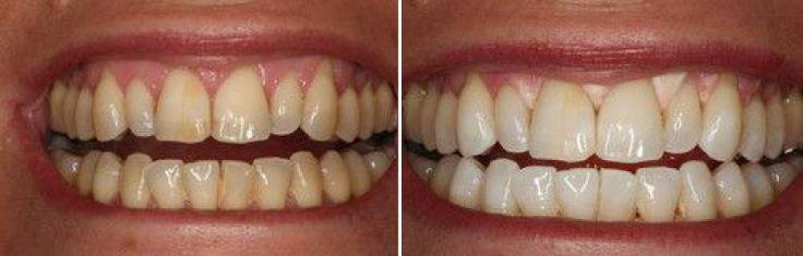 Чистка зубов Air Flow: до и после.