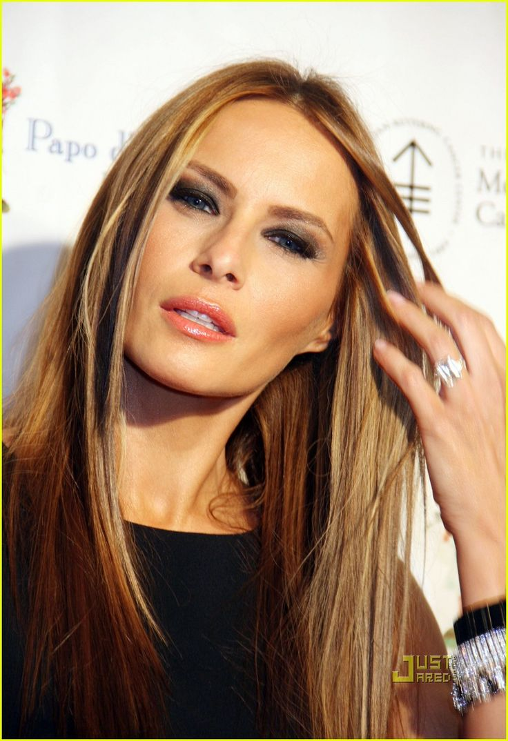 Melania Trump Pictures ( image hosted by forums.thefashionspot.com ) #MelaniaTrumpplasticsurgery #MelaniaTrump #surgeryplasticbeforeafter
