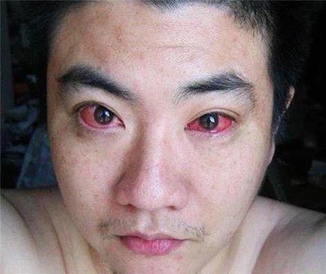 Cet homme a été diagnostiqué avec le cancer des yeux à cause d'une habitude que vous faites probablement tous les jours   Santé SOS