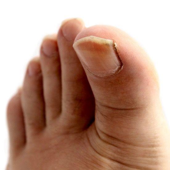El hongo de la uña en el pie los síntomas el tratamiento por los medios públicos