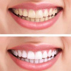 """Statt Zahnpasta: Dieses Hausmittel macht eure Zähne weißer Dieses Hausmittel macht eure Zähne weißer – """"Weißere Zähne ohne teure Beauty-Produkte: Diese Zahn-Verschönerung könnt ihr ganz leicht selbst herstellen!"""""""