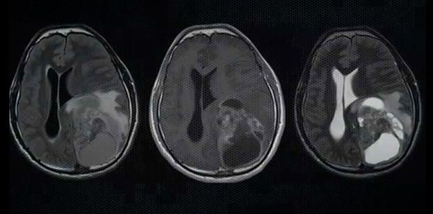 Стволовые клетки научились уничтожать опухоль мозга http://joinfo.ua/inworld/1195971_Stvolovie-kletki-nauchilis-unichtozhat-opuhol.html
