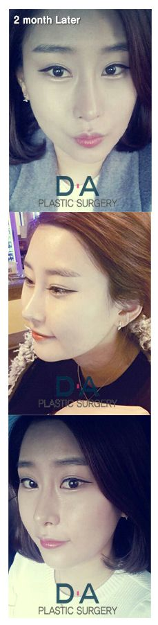 DA Rhinoplasty 2 months after surgery For more info: en.daprs.com Make a reseration/Enquiries: info-en@daprs.com  #PlasticSurgery #DAPRS #DAPlasticSurgery #Rhinoplasty #NoseSurgery #NoseJob #Korea #PlasticSurgeryInKorea #KoreanBeauty #KoreanPlasticSurgery #GangnamPlasticSurgery #Pretty #CosmeticSurgery #Beauty