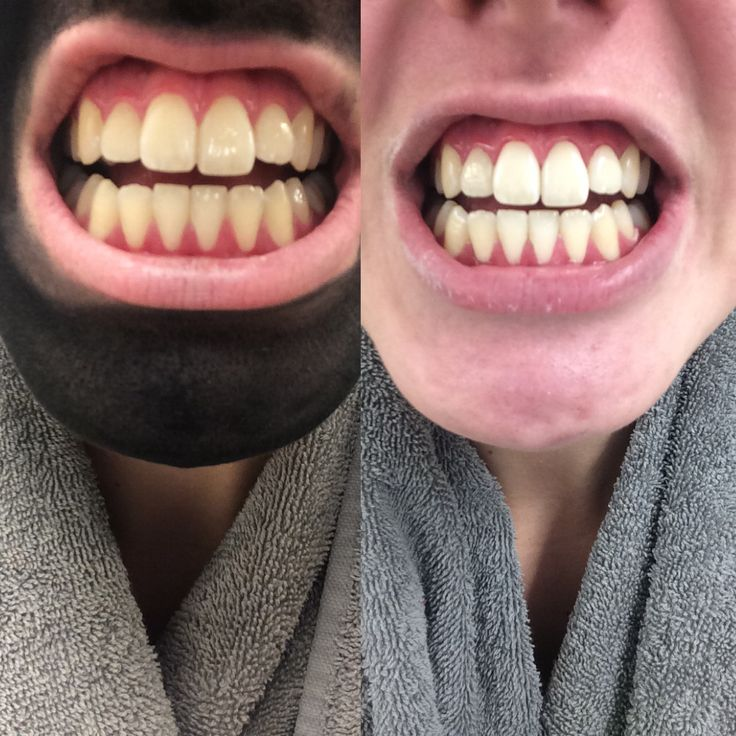 Before and after of one 5 minute treatment using activated charcoal, this stuff really works!! You'll need hydrogen peroxide, baking soda, activated charcoal capsules & a toothbrush (not your everyday one). First, make a mixture of HP & BS into a paste & brush teeth as normal. Then make a mixture of 1 AC capsule & 8 drops of water into a paste then brush your teeth, let the AC sit on your teeth for 5 minutes then rinse off & repeat the HP/BS brushing step again and boom, stains instantly…