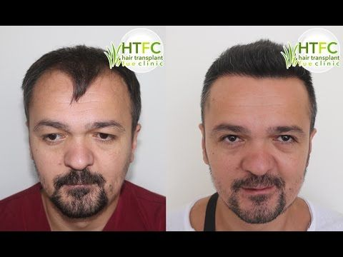 Hair Transplant Surgery – 3700 Grafts – FUE Watch the youtube video:https://www.youtube.com/watch?v=0Ilg6S2WmXs or visit our website: http://www.hairtransplantfue-turkey.com/fue-result/hair-transplant-surgery-3700-grafts-fue/