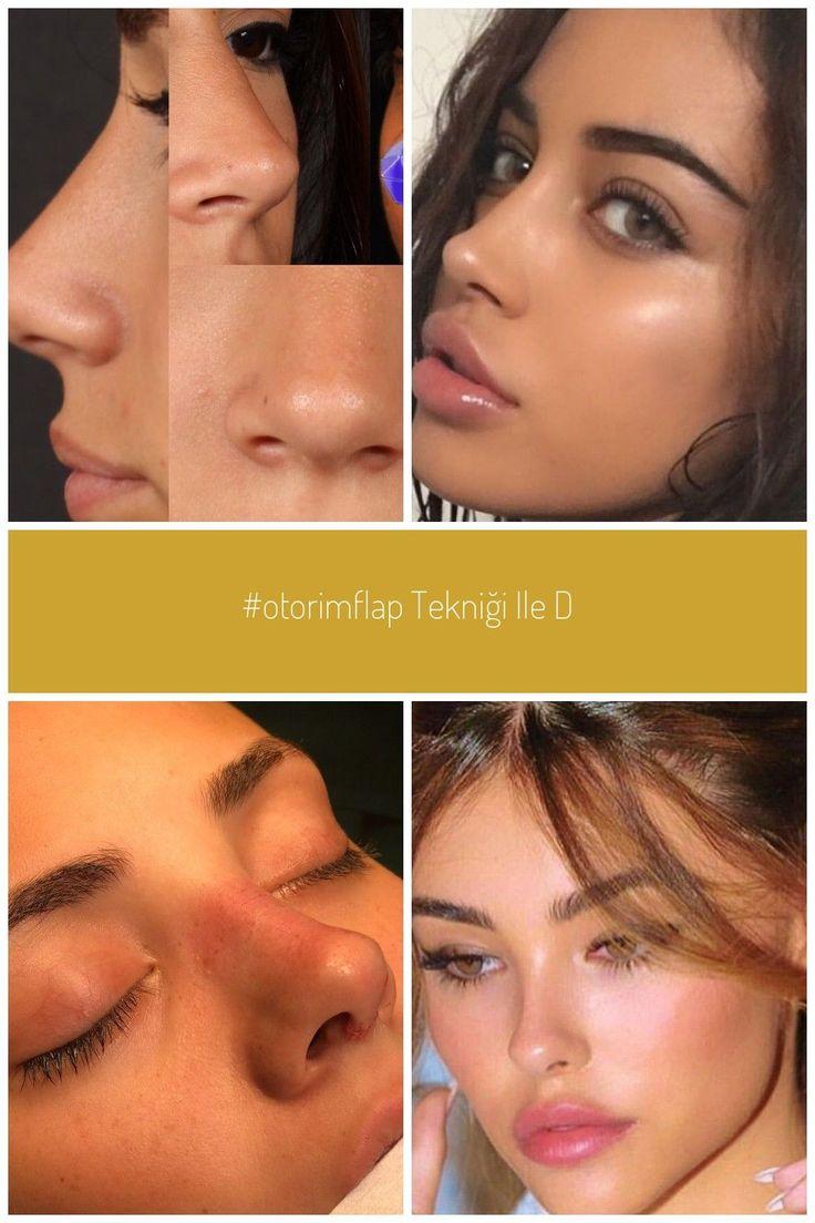 nasenkorrektur nasenplastik nose aesthetic nose