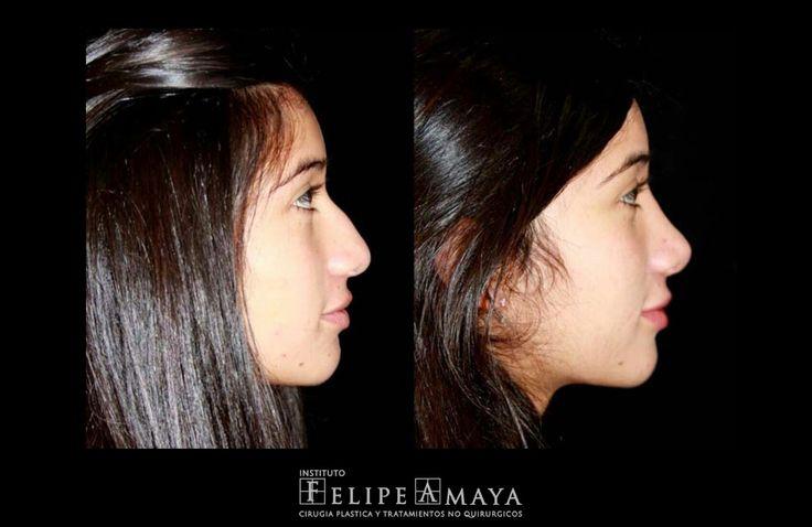 La cirugía de nariz, una de mis favoritas www.felipeamaya.com/cirugia-nariz/ www.felipeamaya.com #InstitutoFelipeAmaya #CambiaTuFotodePerfil