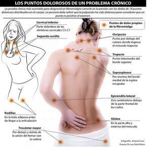 """- Dificultad para dormir - Rigidez por la mañana - Dolores de cabeza - Periodos menstruales dolorosos - Sensación de hormigueo o adormecimiento en las manos y los pies - Falta de memoria o dificultad para concentrarse (a estos lapsos de memoria a veces se les llama """"fibroneblina""""). Los puntos dolorosos de un problema crónico. La prueba clínica mas acertada para diagnosticar fibromialgia consiste en la presión de los dedos de 18 puntos dolorosos distribuidos en el cuerpo."""