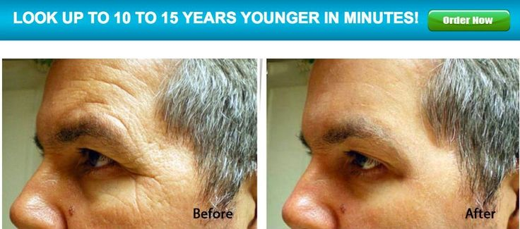 Instant Botox Alternative FACELIFT Lifts Tightens Removes WRINKLES 3 Minutes  #EpiLiftInstantFaceLift