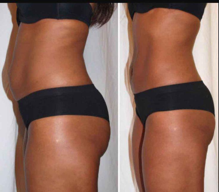 Liposuction Houston