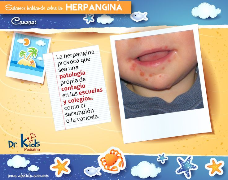 La Herpangina es causada por varios virus Coxsackie del grupo A, los cuales son contagiosos. Las úlceras que provoca la herpangina suelen aparecer en la boca y en la garganta, aunque también en los pies, las manos y los glúteos, las llagas que causa presentan un color blanco o grisáceo y un borde rojo. Pueden llegar a ser muy dolorosas.