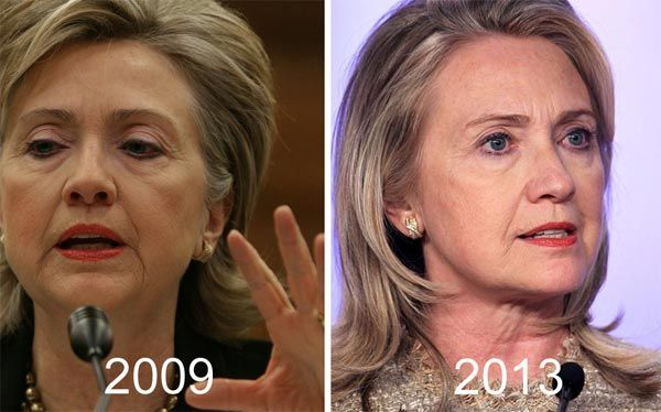 Hillary Clinton Facelift Before & After