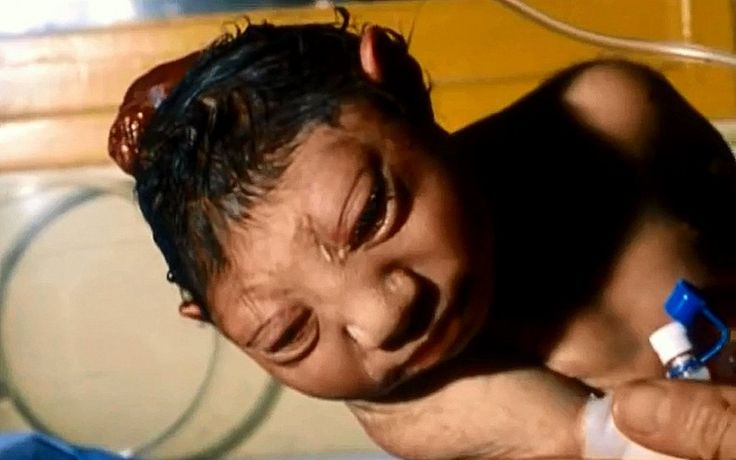 "Depleted Uranium And The Iraq War's Legacy Of Cancer | Picture: An infant born with severe deformities in Fallujah Iraq, allegedly due to the heavy use of depleted uranium by US forces (Image from documentary ""Beyond Treason"")"