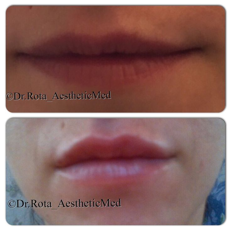 lips  remodeling with Hyaluronic Ac.  ( poor quality pic )