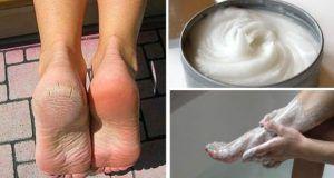 Elimina para siempre los callos y los hongos en los pies con este increíble remedio casero