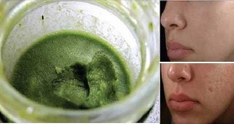 Cette pâte verte va faire disparaître les cicatrices d'acné de votre visage en seulement 3 jours