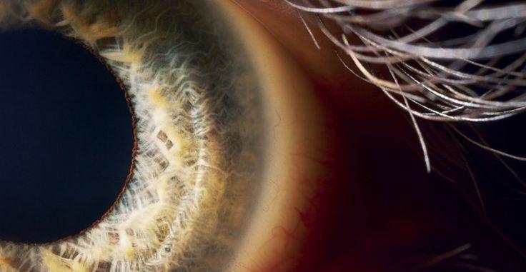 La Universidad de Monash ha desarrollado un nuevo ojo biónico que no necesita de globo ocular para funcionar # Cuando hablamos de biónica nos referimos a parte de la ciencia donde se intenta hacer evolucionar las capacidades del cuerpo humano a base de instalar ciertos componentes tecnológicos de última generación bien sobre un cuerpo …