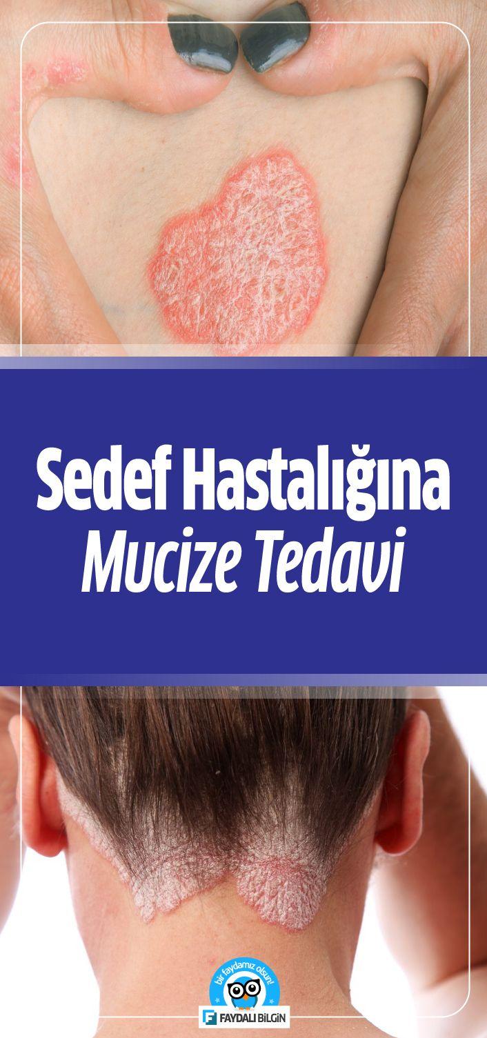 Akne tedavisinde doğal mucizeler