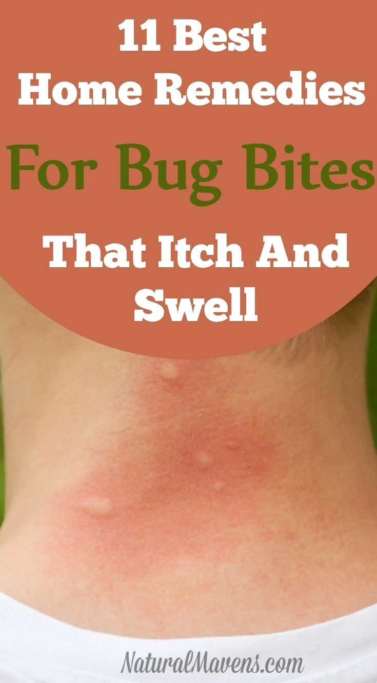 Pin By Liaryabova On Skin Care Remedies For Mosquito