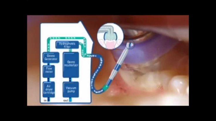 artodonto 9 - lapisowanie vs ozon