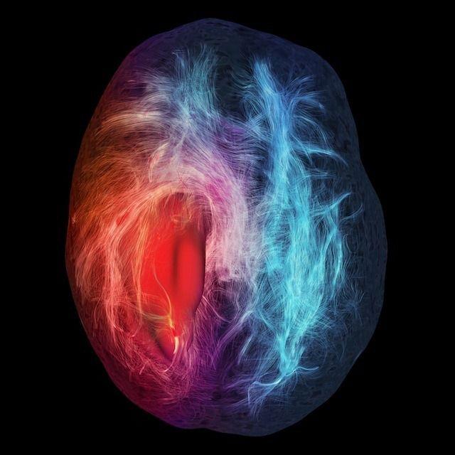 Infiltration cérébrale.  Mention d'honneur et Choix du public; Illustration  Auteur : Maxime Chamberland, David Fortin, Maxime Descoteaux, Sherbrooke Connectivity Imaging Lab  Illustration de la substance blanche du cerveau et ses connexions structurelles. La zone rouge lisse est une tumeur maligne se développant dans le cerveau du patient. Les fibres rouges sont celles qui pourraient être affectées par la chirurgie, pouvant entrainer une perte de la perception ou de fonctions motrice.