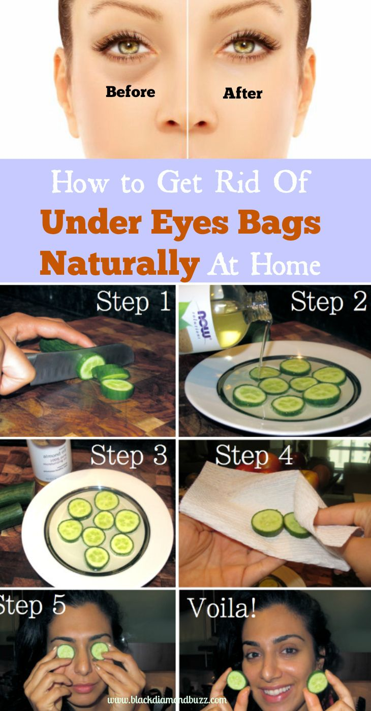 How to Get Rid Of Under Eyes Bags and reduce puffy eyes  Naturally At Home with cucumbers, rose water, teabags, eyes bags creams  and witch hazel