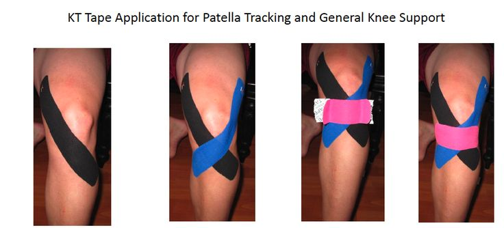 ... knee cap support. You can download the pdf below provided by KT Tape