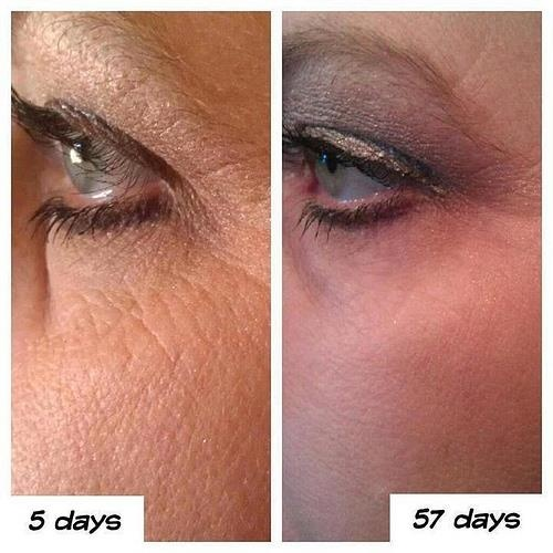 57 days using Nerium!!!! WOW!!!!