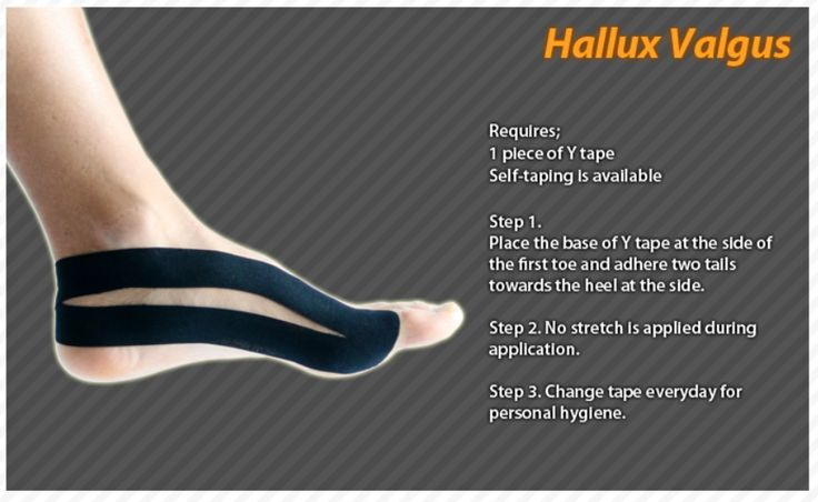 Kinesiology taping instructions for hallux valgus #ktape #halluxvalgus #ares