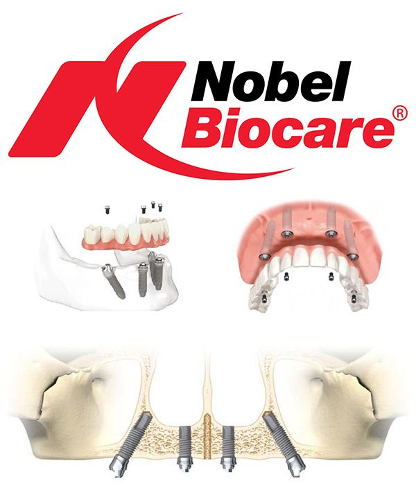 We never compromise on quality - we only use Nobel Biocare @ http://www.charlburydental.co.uk/dental-implants-oxfordshire.html