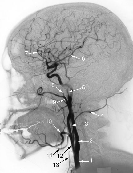 Angiogram of the head: Common Carotid Artery.  Internal Carotid Artery.  Ascending pharyngeal Artery.  Occipital Artery.  Superficial Tempor...