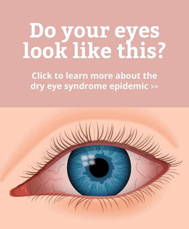 Learn about the causes and symptoms of dry eye syndrome and chronically dry eyes.