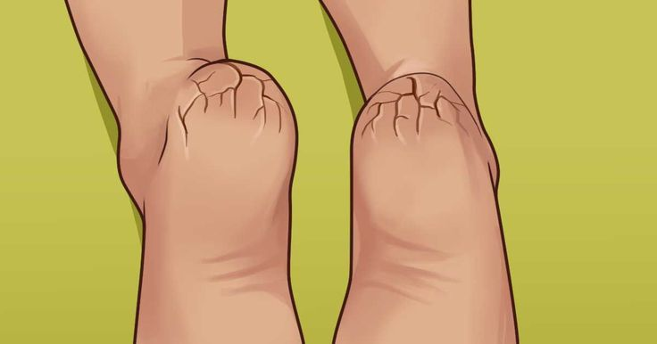 Do you suffer from dry, itchy feet? Is the skin on your feet red, rough, or flaky? Do you see cracks in your heels?