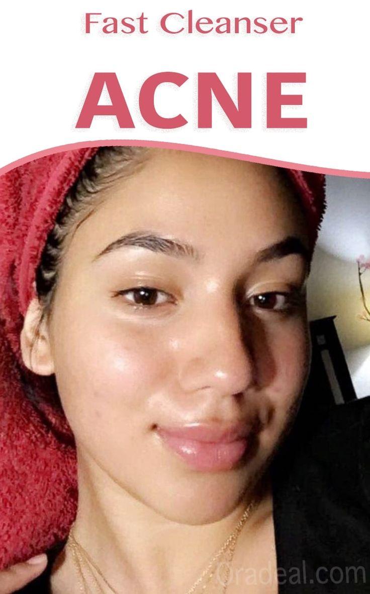 Fast Acne Cleanser Cream
