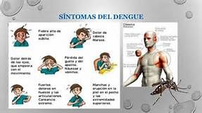 sus causas del dengue - Saferbrowser Yahoo Image Search Results