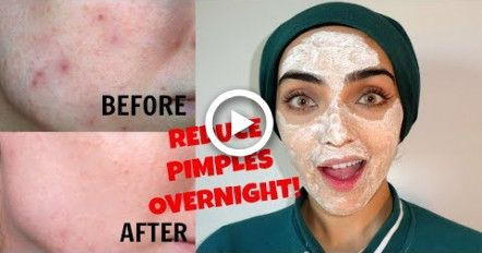 How to Remove Pimples OVERNIGHT | Reduce Pimple Size + Redness INSTANTLY ~ Immy