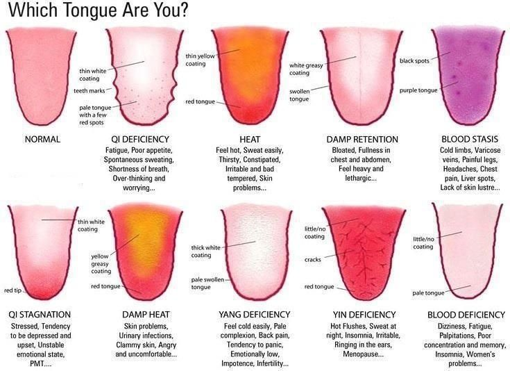 vitamin b deficiency tongue sore - Google Search