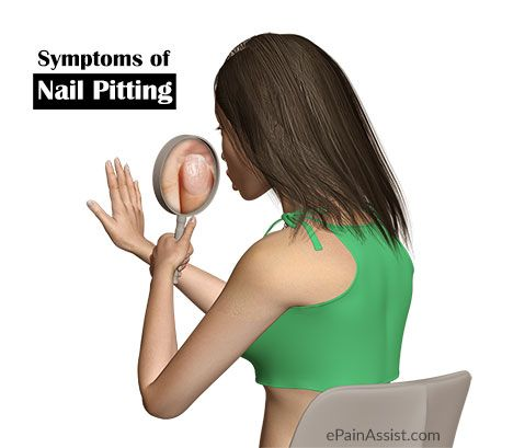 Symptoms of Nail Pitting or Pitted Nails  Read: http://www.epainassist.com/skin/symptoms-and-treatment-of-nail-pitting-or-pitted-nail