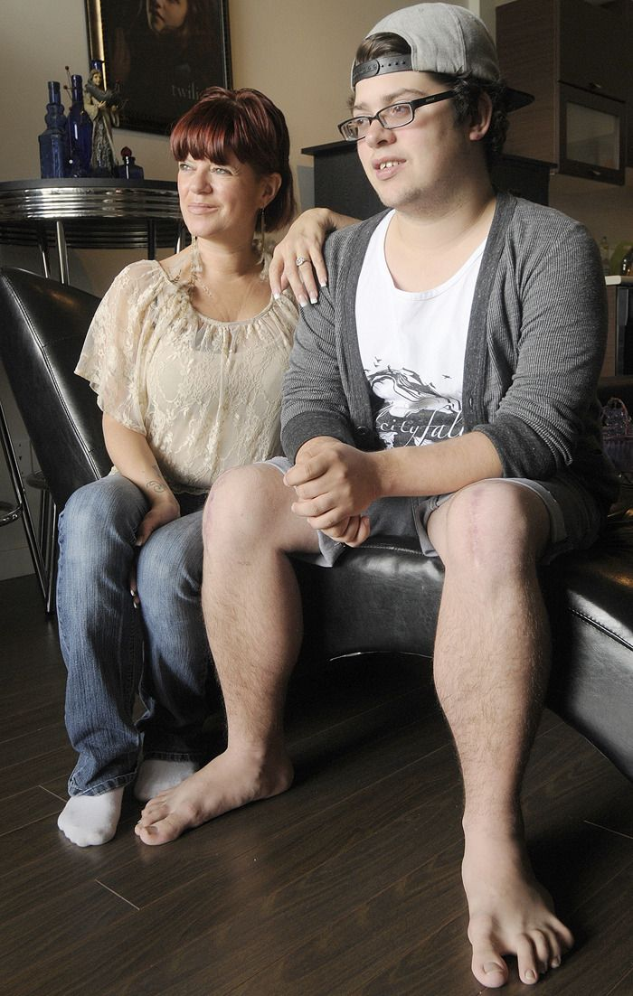 Erica Beckstead and her son Mason Alberts are both living with Osteogenesis imperfecta, or brittle bone disease. - Evan Seal / The Leader
