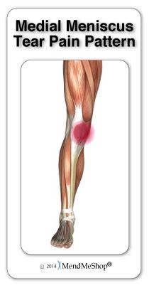 231 Best Knee Injury Recovery Images On Pinterest